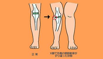 出典www.twmu.ac.jp. お気に入り詳細を見る. X脚を改善する方法